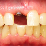 Implant Front Tooth Before