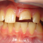 Broken Tooth Repair Before