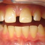 Broken Tooth Repair After